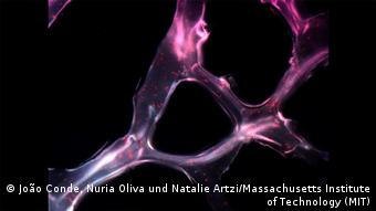 Wellcome Image Awards MicroRNA scaffold cancer therapy (João Conde, Nuria Oliva und Natalie Artzi/Massachusetts Institute of Technology (MIT))