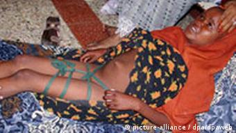 Fay Mohammed lays with her legs bound so that the wound can heal, Mogadishu, Somalia, Monday, 08 March 2004