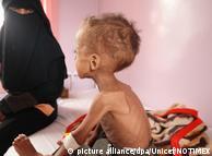 Дитина, яка потерпає від голоду у Ємені