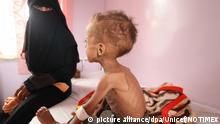 HANDOUT - ARCHIV - Ein Junge wird am 29.07.2015 in einem Krankenhaus in Sanaa (Jemen) behandelt. Wegen Mangelernährung droht knapp 1,4 Millionen Kindern in den Ländern Nigeria, Somalia, Südsudan und Jemen nach Unicef-Angaben der Hungertod. (zu dpa «Unicef: Fast 1,4 Millionen Kindern in vier Ländern droht Hungertod» vom 21.02.2017) (ACHTUNG:Keine Archivierung. Verwendung nur zu redaktionellen Zwecken in Verbindung mit der aktuellen Berichterstattung bei vollständiger Quellenangabe: Foto: Unicef/NOTIMEX/dpa +++(c) dpa - Bildfunk+++ | Verwendung weltweit