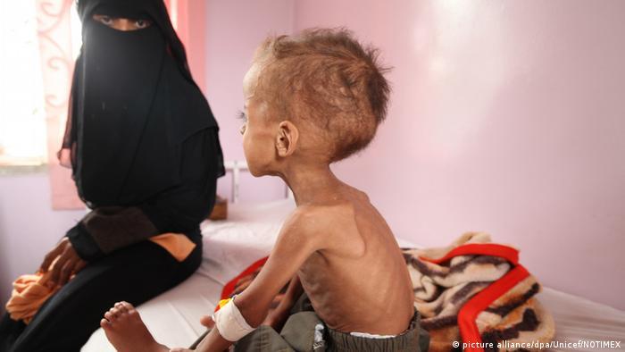 Ємен, Сомалі, Південний Судан, Нігерія, голод, ООН, діти, ЮНІСЕФ