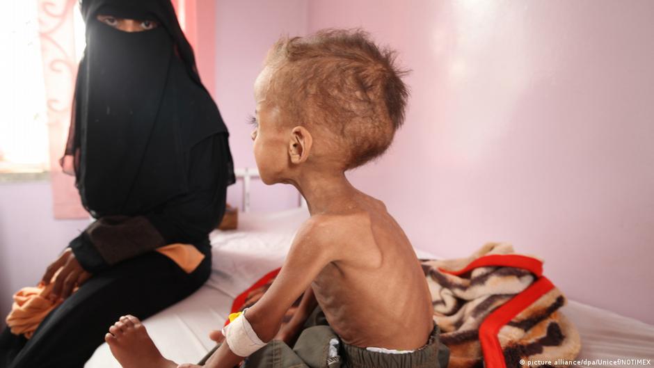 مسائية DW: اليمن بعد عامين من الحرب.. مجاعة ودمار وفقر