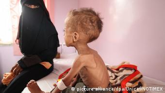Hungersnot in Jemen