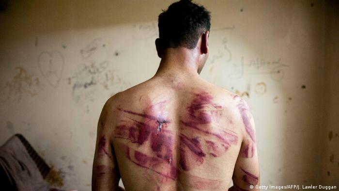 A Syrian man shows marks of turture on his back