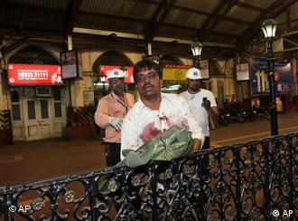 A man injured in firing leans on a railing in Mumbai