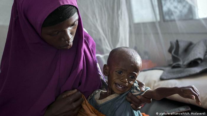 A Somalian woman holds her crying child as they wait for medical treatment