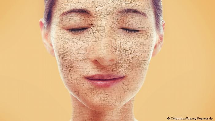 Frau mit trockener Haut (Colourbox/Alexey Poprotskiy )