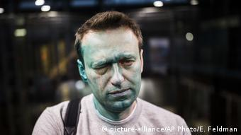 Russland | Oppositionsführer Alexei Navalny nach Attacke mit Zelyonka (brilliant green antiseptic) (picture-alliance/AP Photo/E. Feldman)
