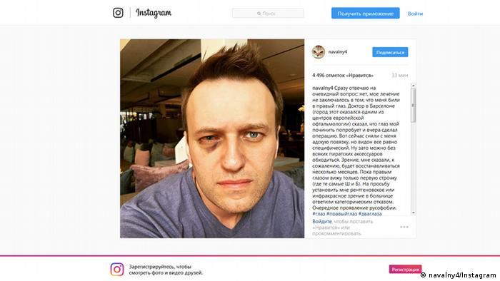 Алексей Навальный после операции (фото из Instagram политика)