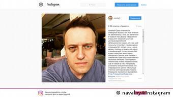 Фото Навального в Instagram после операции на глаз