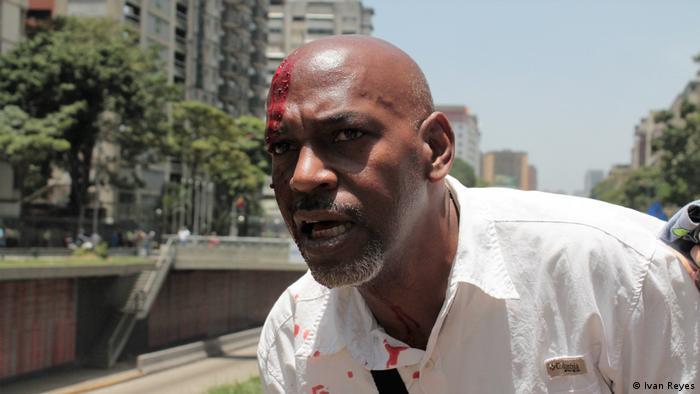 Lino Rivera, herido por una piedra.