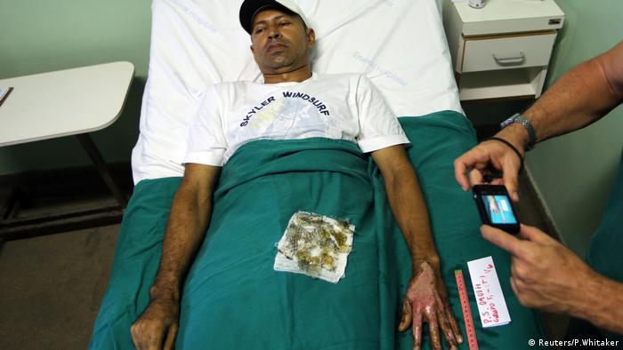 Tilapia Fischhaut Fisch Schuppen Heilung Verbrennungen Patienten Krankenhaus Brasilien (Reuters/P.Whitaker)