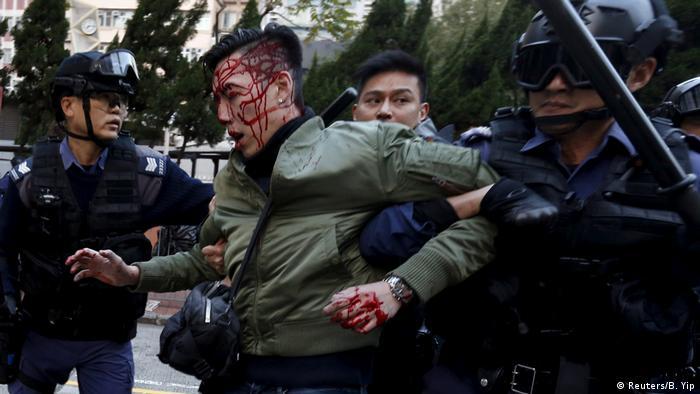En febrero de 2016, las autoridades intentaron desplazar a los vendedores callejeros de un barrio obrero de Hong Kong.