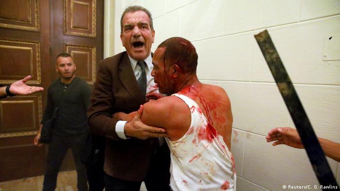 Parlamentarios venezolanos, víctimas de un ataque por parte de presuntos simpatizantes del Gobierno.
