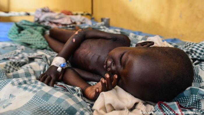 A sick 4-year-old boy lies on a bed in South Sudan