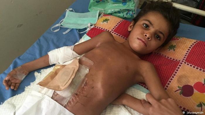 Дитина, яка постраждала внаслідок авіаудару в Ємені (фото з архіву)