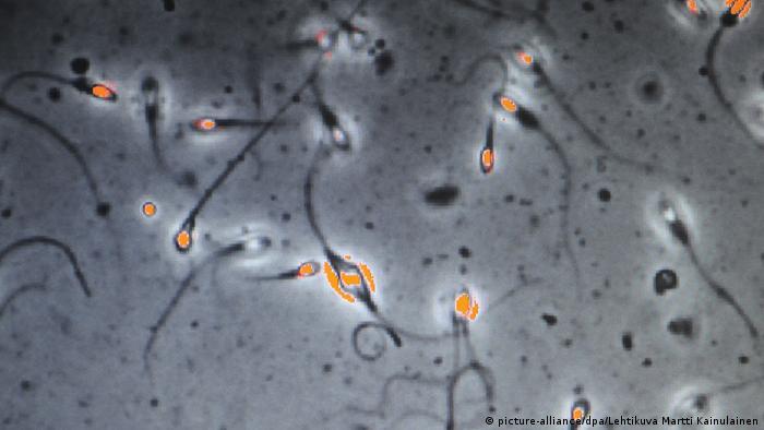 Spermien Samenuntersuchung