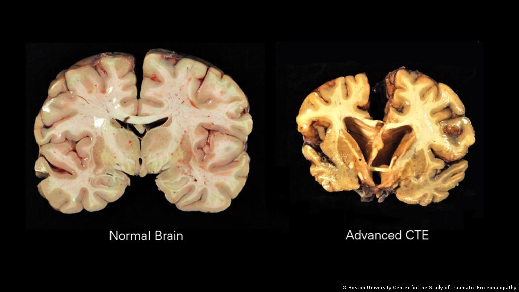 Fotos aufgeschnittener menschlicher Gehirne. Links ein gesundes, rechts ein Gehirn mit fortgeschrittener CTE. Die braune Verfärbung stammt von Ablagerungen des Proteins Tau.