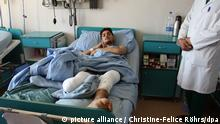 2. Afghanistan Armee der Beinlosen