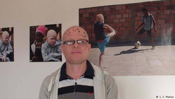 Mosambik Ausstellung Preto Branco beschäftigt sich mit dem Thema Albinismus ( L. C. Matias)