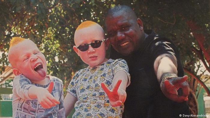 Mosambik Ausstellung Preto Branco beschäftigt sich mit dem Thema Albinismus