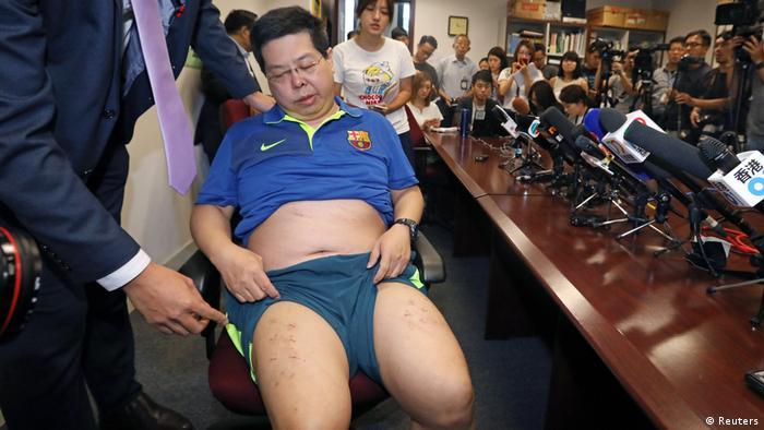 China Bürgerrechtler Howard Lam wirft China Misshandlung vor (Reuters)
