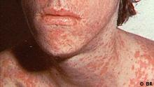 A person suffering from a Measles infection (BR)