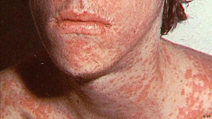 A person suffering from a measles infection