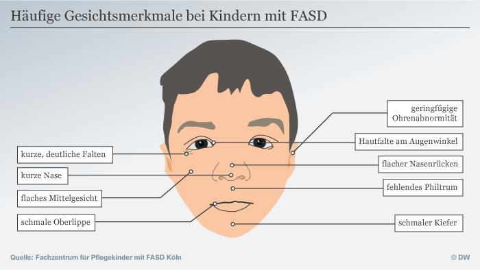 Infografik Gesichtsmerkmale bei Kindern mit FASD