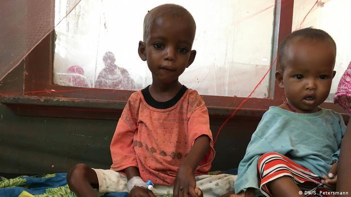 Somalia Mogadischu | unterernährtes Kleinkind