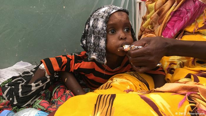 Malnourished child being fed by her mother (DW/S. Petersmann)