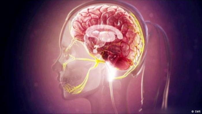 Videostill Fit und Gesund Kopfschmerzen (SWR)