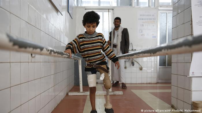 A young boy who lost his leg due to Yemen's conflict uses a prosthetic limb at a government-run rehabilitation center