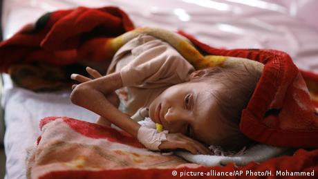 A malnourished child lies in a bed waiting to receive treatment at a therapeutic feeding center