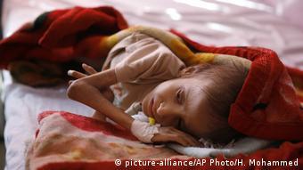 Criança iemenita subnutrida deitada em cama