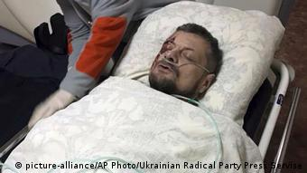 Игорь Мосийчук после покушения на него в Киеве, октябрь 2017 года