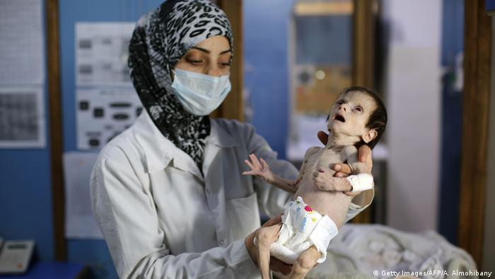 A malnourished infant being held by a nurse. The baby has its mouth gaping open and looks half dead.