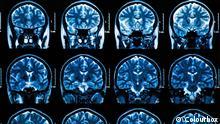 Kernspinaufnahmen eines Gehirns