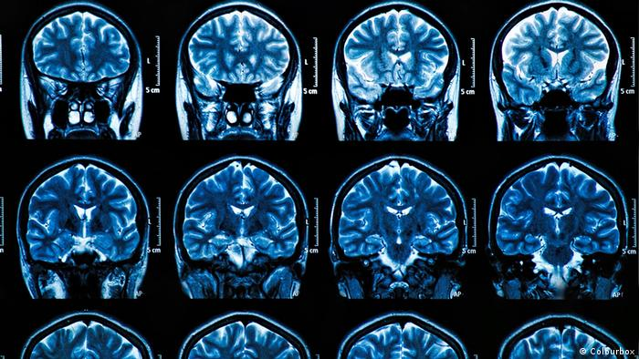 Снимки головного мозга человека