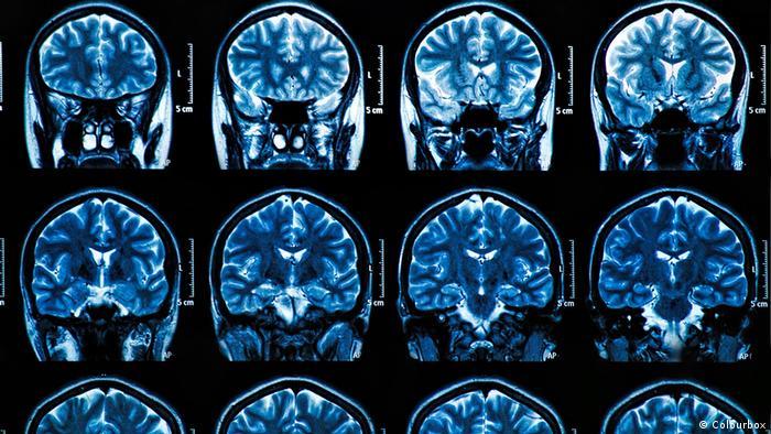 Снимки МРТ головного мозга человека
