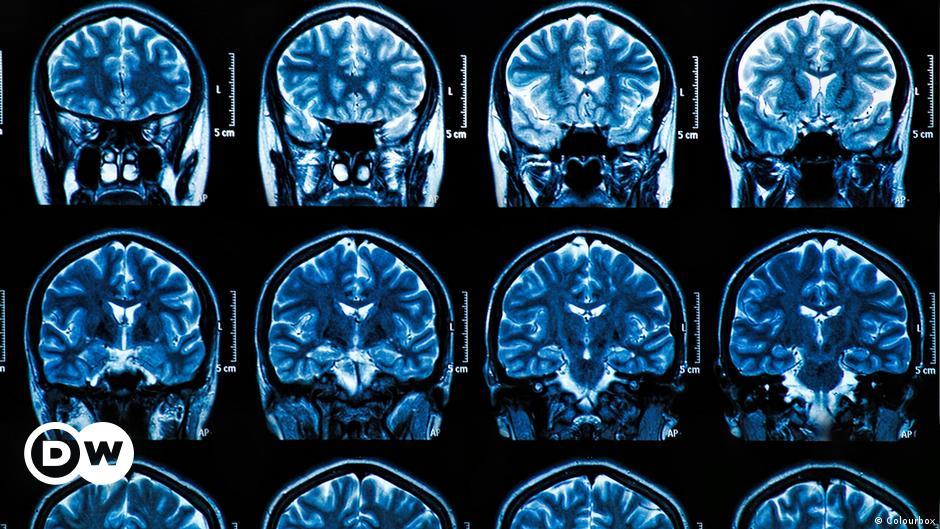 COVID-19 puede causar graves daños cerebrales, incluso en pacientes con  síntomas leves   Coronavirus   DW   09.07.2020