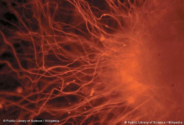 Menschliche Nervenzellen (Foto: Wikipedia)