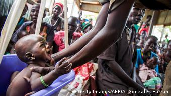 Südsudan Hunger Symbolbild (Getty Images/AFP/A. Gonzales Farran)