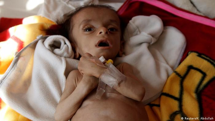 Jemen Hunger Symbolbild Kind in Sanaa
