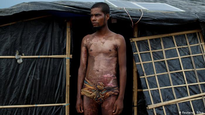 Myanmar Fotoreportage Rohingya Flüchtlinge Verletzungen (Reuters/J. Silva)