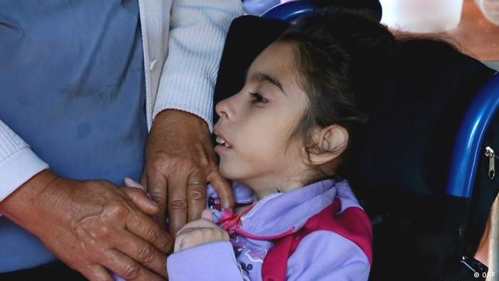 Behindertes Mädchen in Argentinien (Region Misiones).Foto aus dem Dokumentarfilm Glyphosat - Argentiniens kranke Kinder vom ORF.