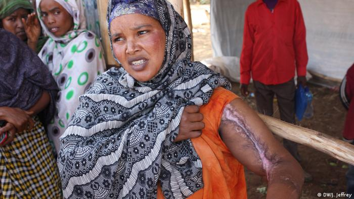 A displaced Somali woman exhibiting a scar on her arm