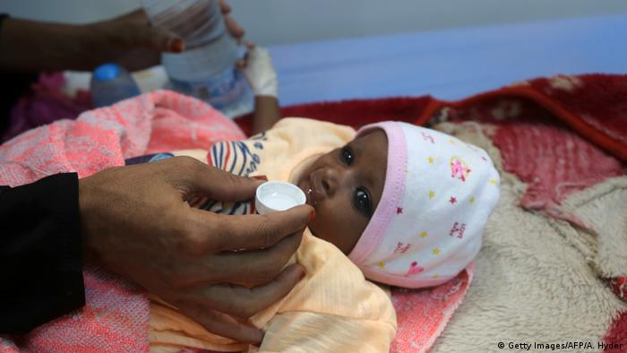Malnourished child in Yemen (Getty Images/AFP/A. Hyder)