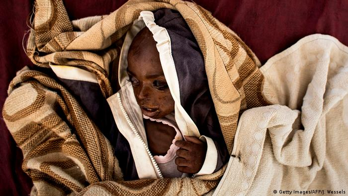 BM: Kongo'da 400 bin çocuk açlıktan ölebilir