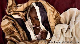 Demokratische Republik Kongo Unterernährtes Kind (Getty Images/AFP/J. Wessels)